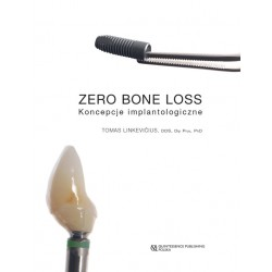 Zero Bone Loss - Koncepcje implantologiczne
