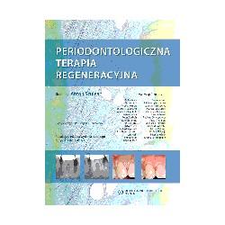 Periodontologiczna terapia regeneracyjna